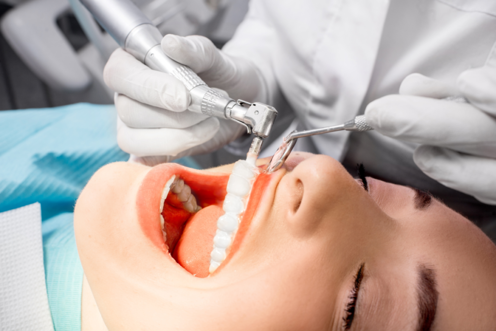 How Often Should I Get a Routine Dental Cleaning